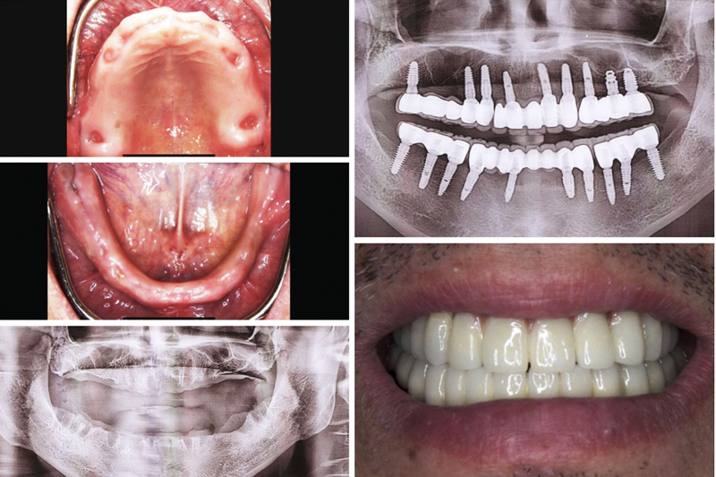 Same Day Teeth Replacements with Dental Implants in Berkeley Lake