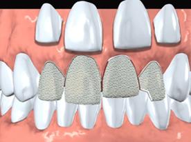 Cosmetic Dentistry in Berkeley Lake